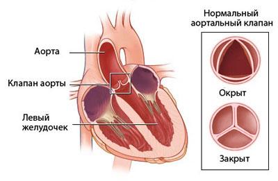 схема аортального клапана