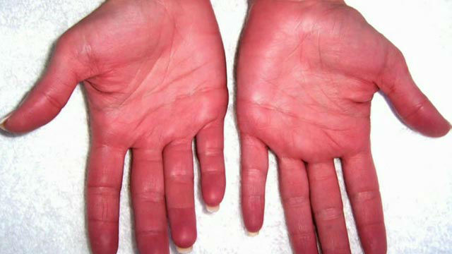 Красные руки фото