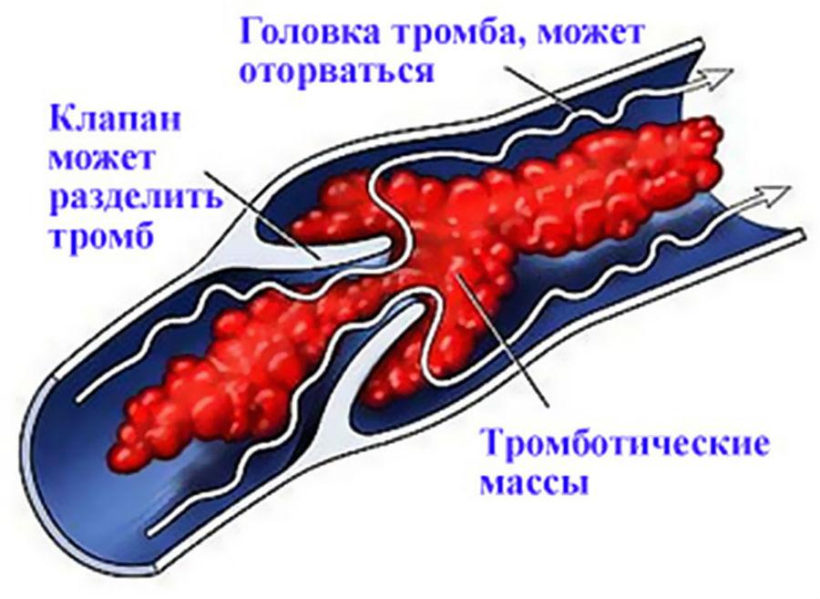 Тромб внутри вены