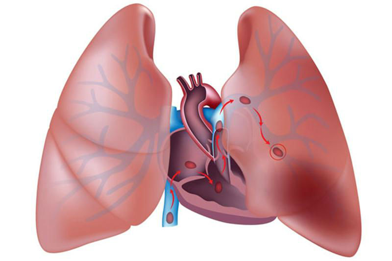 Схема тромбоэмболии легочной