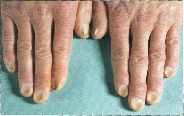 Изменение ногтей при анемии