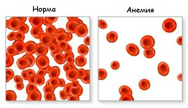 Мазок крови в норме и при анемии