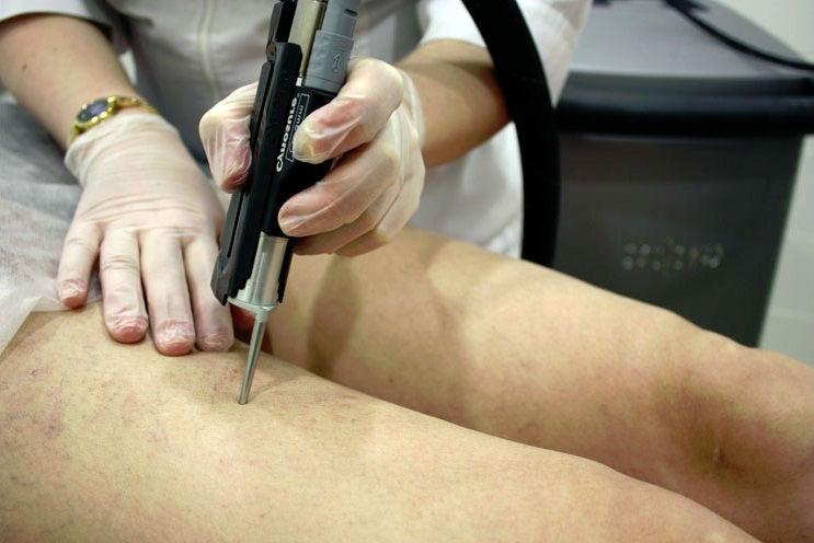 Озонотерапия сосудов на ногах