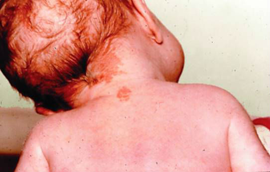 Гемангиома у ребенка на шее
