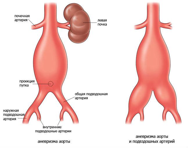 Аневризмы брюшной аорты
