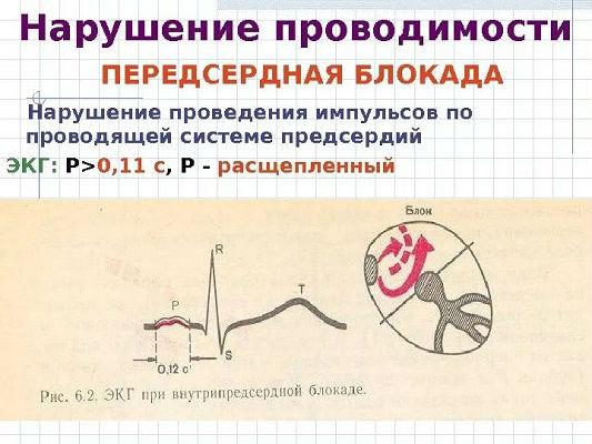 Нарушение проводимости сердца на ЭКГ