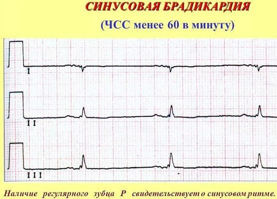Брадикардия на кардиограмме