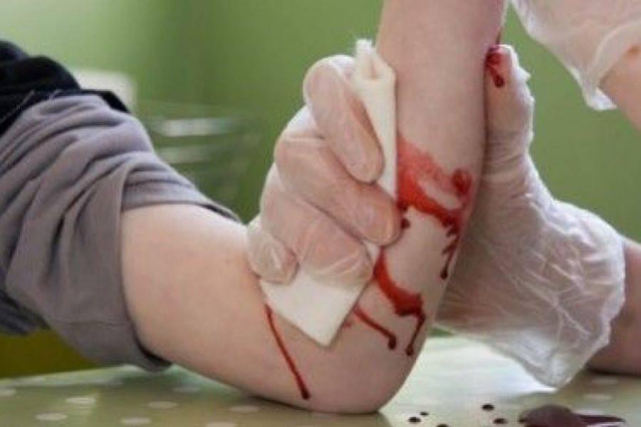 Остановка кровотечения