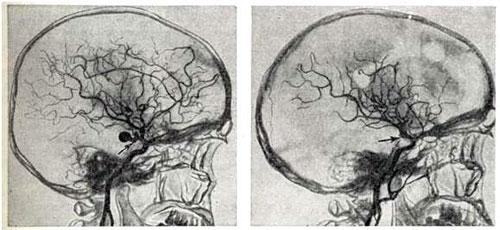 аневризма до и после операции