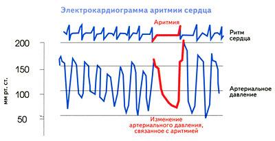 ЭКГ при аритмии