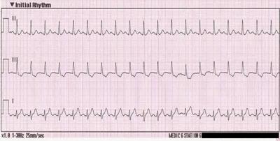кардиограмма при синусовой тахикардии