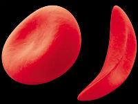 Нормальный и серповидный эритроцит