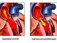 Недостаточность аорты