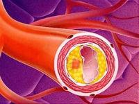 Уплотнение аорты: что это, почему уплотняется ее стенка и корень, лечение