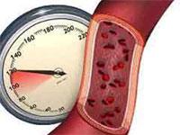Повышенное артериальное давление при гипертонии