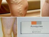 Аскорутин от варикоза