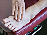 Закупорка сосудов на ногах симптомы