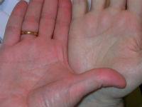Рука пациента с болезнью Вакеза