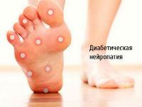 Диабетическая невропатия