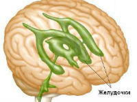 Желудочки мозга