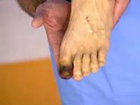 Гангрена первого пальца ноги
