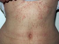 Геморрагическая сыпь на животе