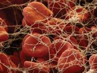 Кровяной сгусток под микроскопом