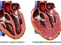 Нормальное сердце и при гипертрофии