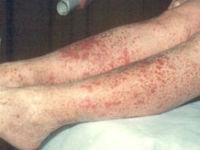 Геморрагическая сыпь на ногах
