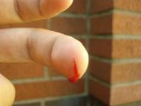 Из пальца на руке идет кровь