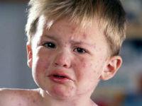 Капилляротоксикоз у взрослых