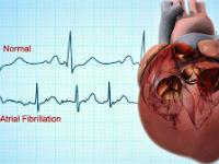 Сердце и ЭКГ