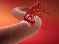 Кровотечение из сосуда