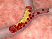 Атеросклеротическая бляшка в сосуде