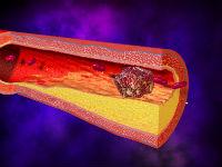 Тромб в коронарной артерии