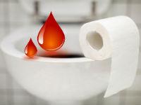 Как лечить геморрой когда идет кровь