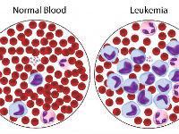 Нормальная кровь и лейкоз