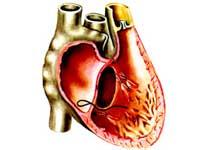 левожелудочковая сердечная недостаточность