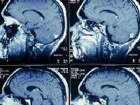 Что такое мрт головного мозга с сосудистой программой