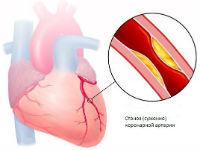 Поражение сердечных сосудов атеросклерозом