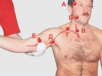 Прижатие артерий при кровотечении