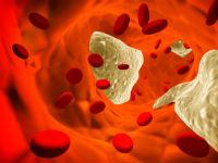 Холестериновые бляшки внутри сосуда
