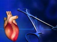 Лечение пороков сердца