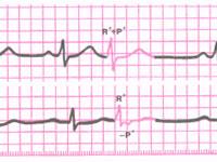 кардиограмма при экстрасистолия предсердий