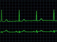 кардиограмма при брадикардии