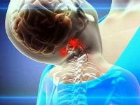 Вертеброгенное воздействие на позвоночные артерии