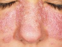 Сыпь на лице при системной красной волчанке