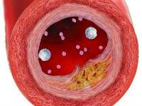 Атеросклеротическая бляшка в стенке сосуда