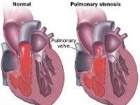 Сужение легочной артерии