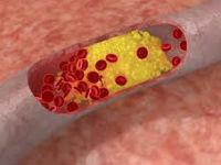 Аторосклеротическая бляшка